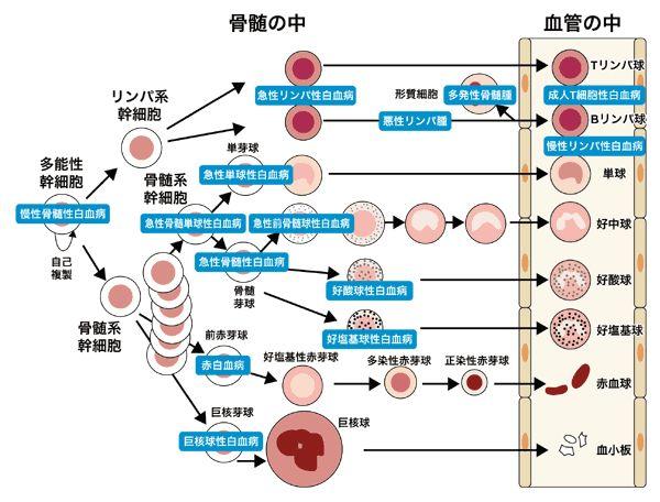 白血病入門(3)白血病の種類と原因: 院長の独り言